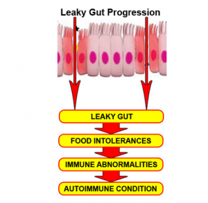leaky gut progression to autoimmune